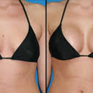 Breast Actives Breast Enhancement 100 Pueraria Mirifica