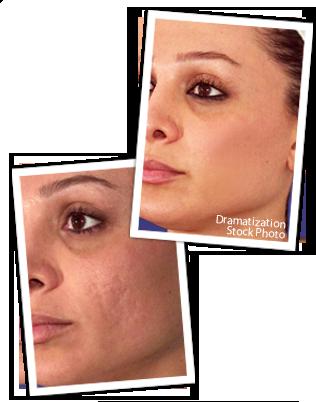 Skin Scar Treatment-Revitol